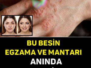 BU BESİN EGZAMA VE MANTARI ANINDA YOK EDİYOR