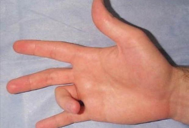 İşte parmak çıtlamasının gerçek nedeni! Duyduğumuz o ses aslında.. galerisi resim 7