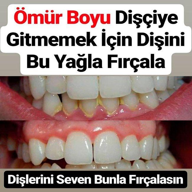 Ömür Boyu Dişçiye Gitmemek İçin Dişini Bu Yağla Fırçala galerisi resim 1