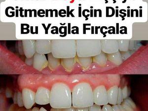 Ömür Boyu Dişçiye Gitmemek İçin Dişini Bu Yağla Fırçala