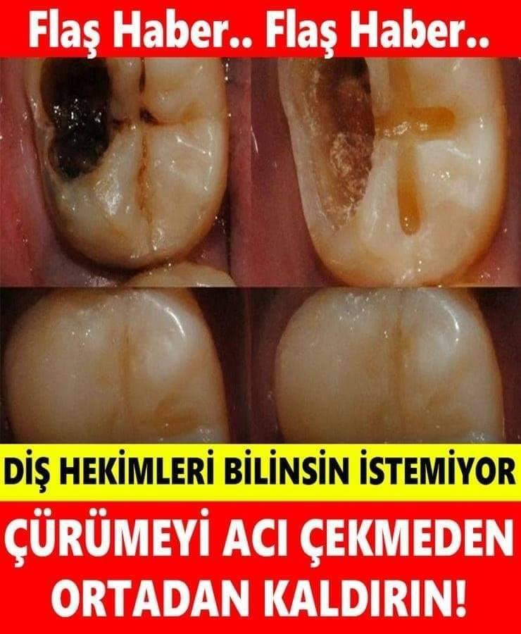 Diş Hekimleri Bunun Bilinmesini İstemez galerisi resim 1