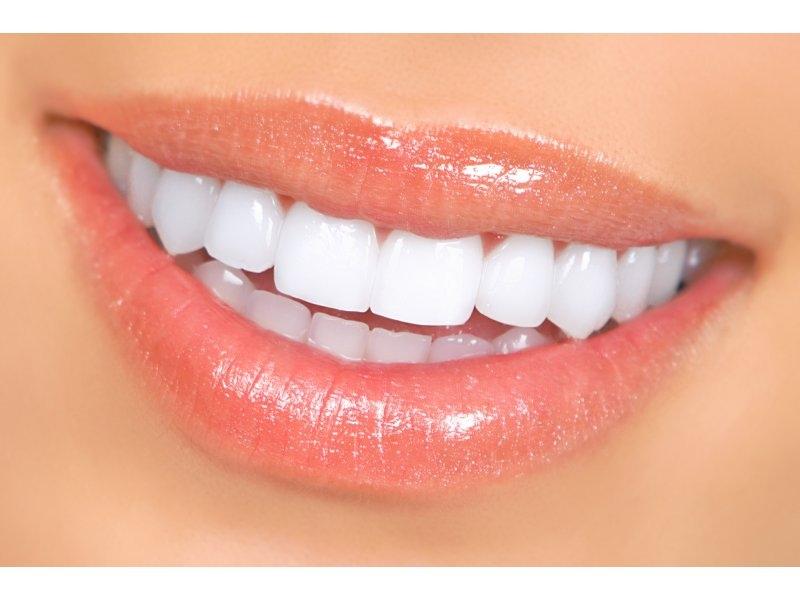 Aslında dişleri beyazlatmak bu kadar kolay! galerisi resim 3