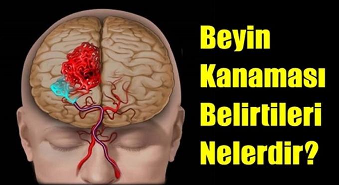 Beyin k-anaması geçirdiğinizi bu basit yöntemle hemen anlayabilirsiniz…